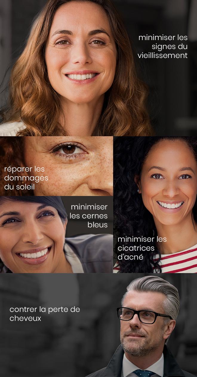 Minimiser les signes du vieillissement, Réparer les dommages du soleil, Minimiser les cernes bleus, Minimiser les cicatrices d'acné, Contrer la perte de cheveux